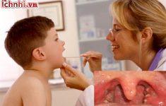Tại sao trẻ em hay bị viêm họng? Dấu hiệu +cách phòng tránh3