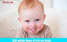 Dấu hiệu, biểu hiện và cách chữa sốt phát ban ở trẻ sơ sinh1