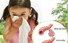 Nguyên nhân +Cách chữa viêm phế quản ở trẻ em siêu hiệu quả3