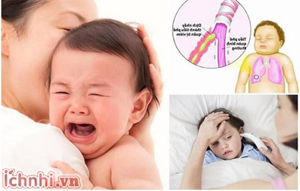 Biểu hiện, dấu hiệu, triệu chứng viêm phế quản ở trẻ em