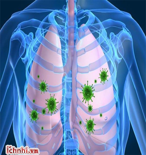 Nguyên nhân, triệu chứng và cách chăm sóc trẻ bị viêm phổi