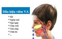 Viêm VA ở trẻ em là gì? Nguyên nhân & cách điều trị hiệu quả5