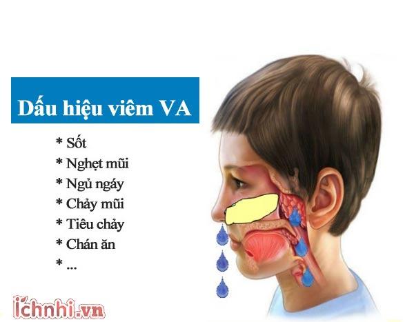 Viêm VA ở trẻ em là gì? Nguyên nhân & cách điều trị hiệu quả