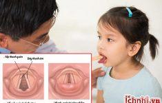 Nguyên nhân + phác đồ điều trị viêm thanh quản ở trẻ em hiệu quả23