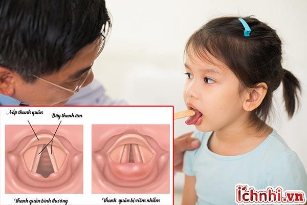 Nguyên nhân + phác đồ điều trị viêm thanh quản ở trẻ em hiệu quả