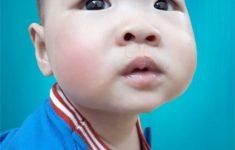 Để chữa sổ mũi cho trẻ hiệu quả mẹ cần tránh 5 sai lầm này