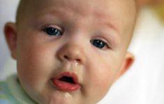 Nguyên nhân và 9 Cách chữa bé bị chảy nước mũi siêu hiệu quả1