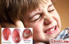 Mẹ cần làm gì khi bé bị viêm tai giữa xung huyết?1