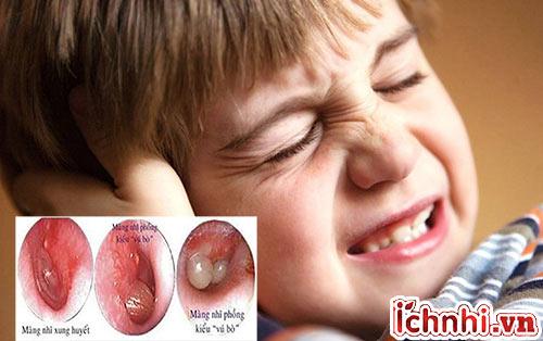 Mẹ cần làm gì khi bé bị viêm tai giữa xung huyết?