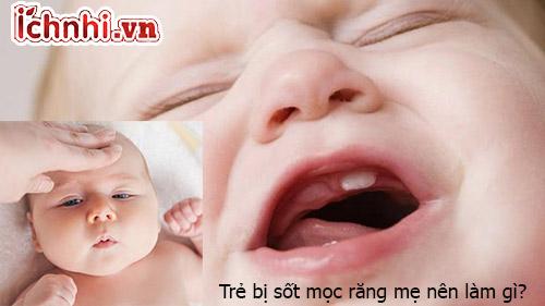 Trẻ bị sốt mọc răng mẹ nên làm gì giúp con nhanh khỏi