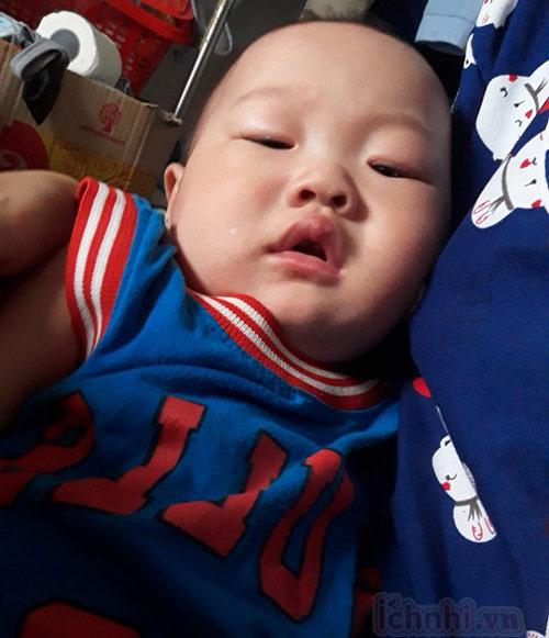 1. Trẻ sơ sinh bị nghẹt mũi do đâu?