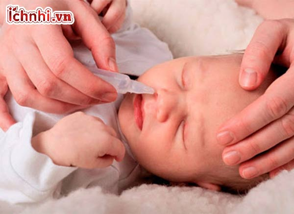 +8 Cách trị sổ mũi cho bé không dùng thuốc siêu hiệu quả2