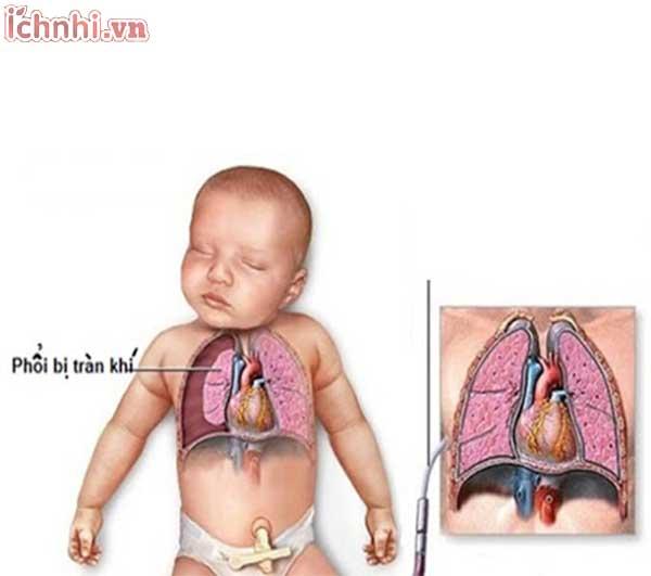 Nguyên nhân dấu hiệu +Cách trị trẻ sơ sinh thở khò khè và ho2