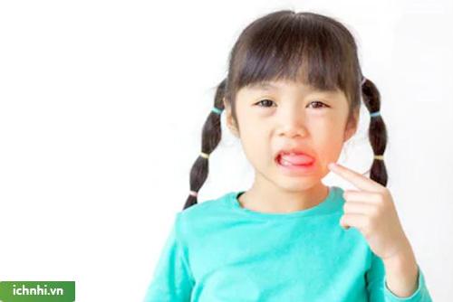 Nguyên nhân nào gây ra nhiệt miệng ở trẻ nhỏ?